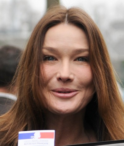 Carla-Bruni-cosmetic-procedures-botox